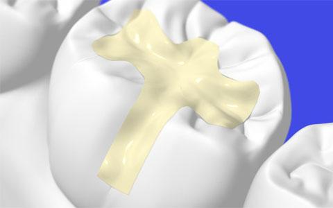 Dental Fillings White