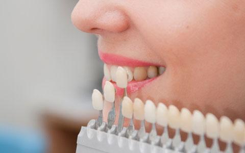 Dental Laminate Veneers